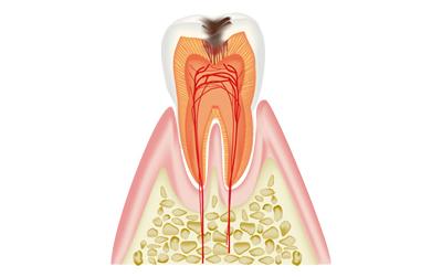 虫歯_c2